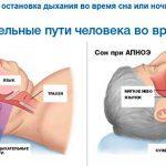Апноэ сна: причины и лечение