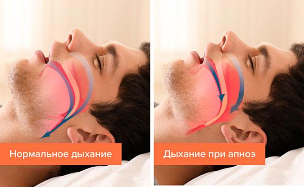 Ночное апноэ сна: причины и лечение