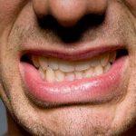 Скрип зубами во сне и другие звуки