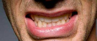 Почему человек во сне издаёт такие звуки, как чавканье, чмоканье или скрип зубами?
